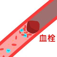 血栓で血管が詰まる