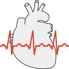 心電図の異常