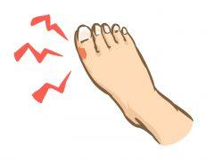 足の感染症