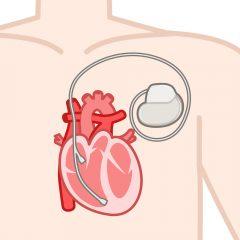 心臓ペースメーカー