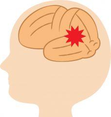 脳梗塞の危険