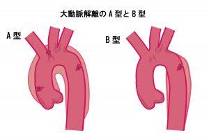 大動脈解離のA型とB型