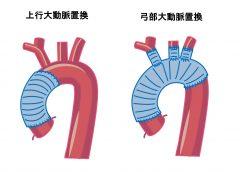 人口血管置換術